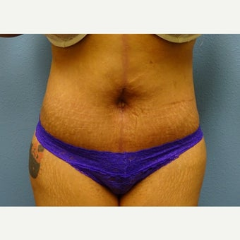 35-44 year old woman treated with Tummy Tuck after 1574866