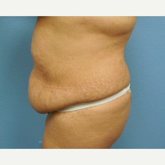 35-44 year old woman treated with Tummy Tuck 1574866