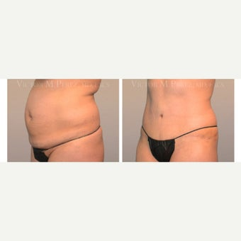 35-44 year old woman treated with Tummy Tuck after 2107519