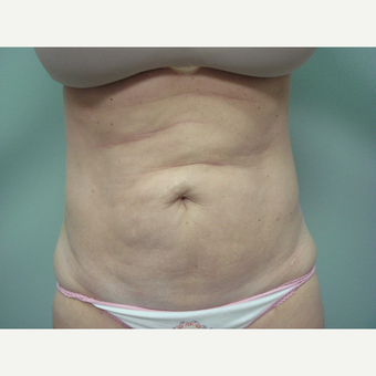 35-44 year old woman treated with Tummy Tuck before 3300087