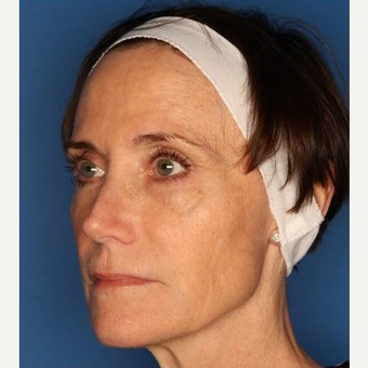 55-64 year old woman treated with Sculptra before 3711834
