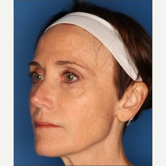 55-64 year old woman treated with Sculptra after 3711834