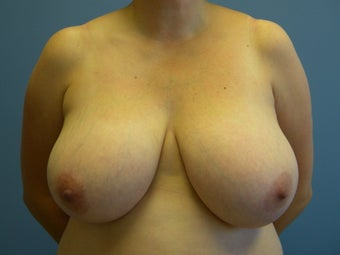 Breast reduction in a 34 DDD before 1063571