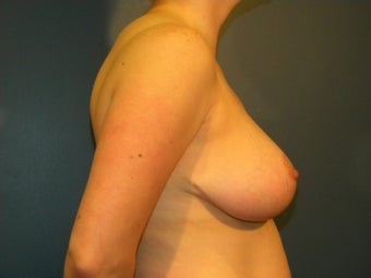 Breast reduction in a 34 DDD 1063571