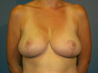 Breast reduction in a 34 DDD after 1063571