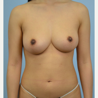 25-34 year old woman treated with Breast Fat Transfer after 3432070