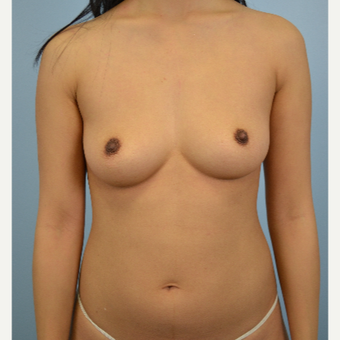 25-34 year old woman treated with Breast Fat Transfer before 3432070