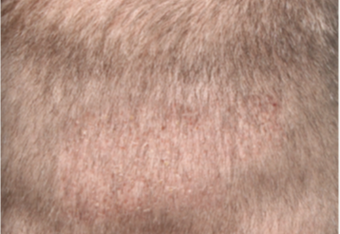 35-44 year old man treated with ARTAS Robotic Hair Transplant - Donor Area after 2050484