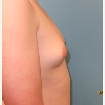 18-24 year old man treated with Male Breast Reduction before 3725469