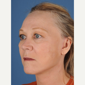 55-64 year old woman treated with Facelift after 3658769