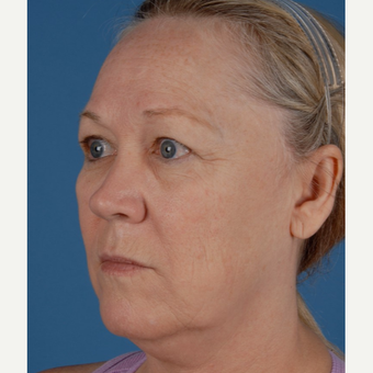 55-64 year old woman treated with Facelift before 3658769