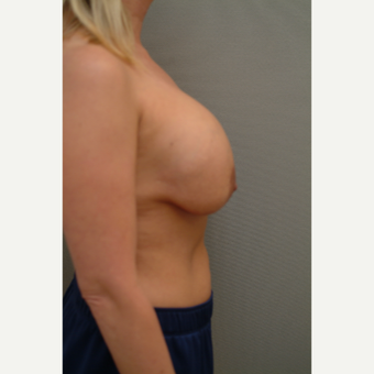 35-44 year old woman treated with Breast Implant Revision before 3732730