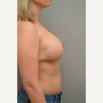 35-44 year old woman treated with Breast Implant Revision after 3732730