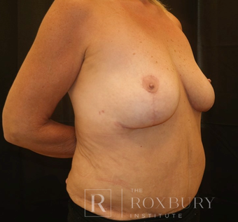 55-64 year old woman treated with Breast Implant Removal after 3850823