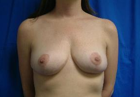 Breast Reduction after 1365189