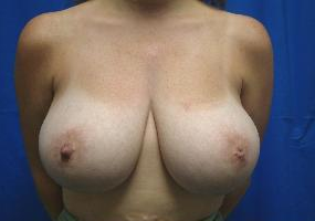 Breast Reduction before 1365189