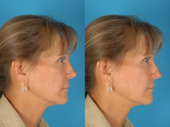 Revision Rhinoplasty Patient before 894216