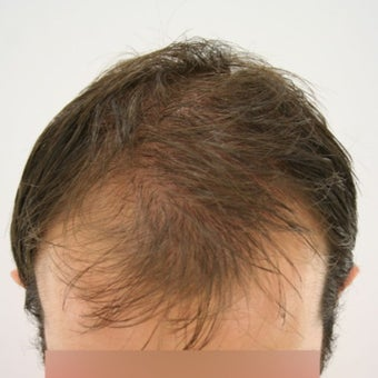 27 year old man treated with FUE Hair Transplant before 1622205
