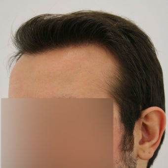 27 year old man treated with FUE Hair Transplant 1622205