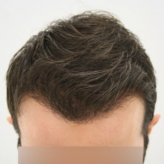 27 year old man treated with FUE Hair Transplant after 1622205
