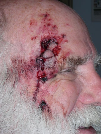 Repair of complex facial laceration before 230938