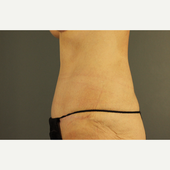 45-54 year old woman treated with Drainless Tummy Tuck
