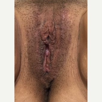 25-34 year old woman treated with Vaginal Rejuvenation after 3628472