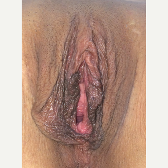 25-34 year old woman treated with Vaginal Rejuvenation before 3628472