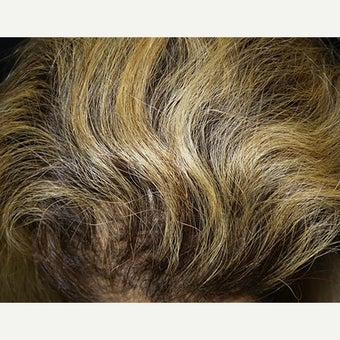 PRP for Hair Loss after 2459616