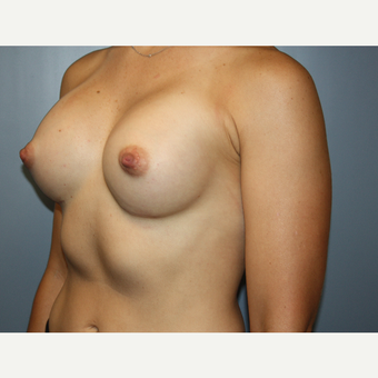 35-44 year old woman treated with Breast Augmentation after 3684830
