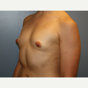 35-44 year old woman treated with Breast Augmentation before 3684830