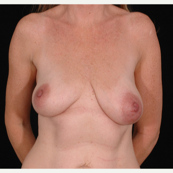 35-44 year old woman treated with Breast Lift with Implants before 3052682