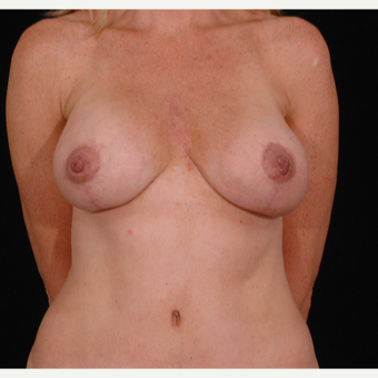 35-44 year old woman treated with Breast Lift with Implants after 3052682