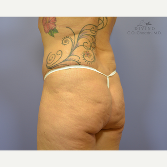 45-54 year old woman treated with Butt Implants before 3421258