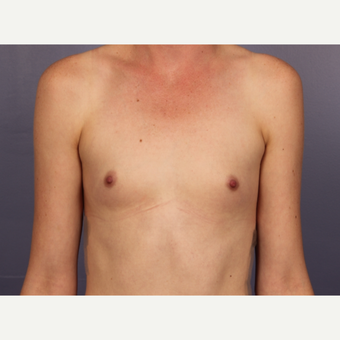 Breast Augmentation before 3663731