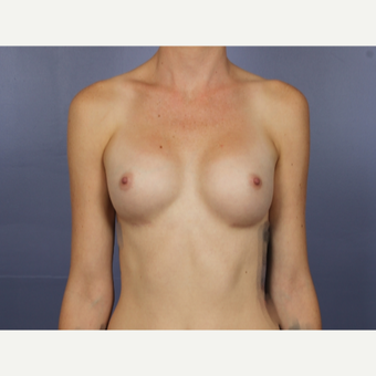 Breast Augmentation after 3663731