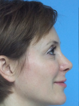 18-24 year old woman treated with Rhinoplasty after 3826186