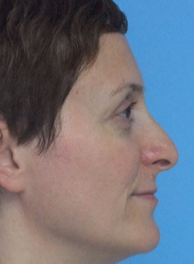 18-24 year old woman treated with Rhinoplasty before 3826186