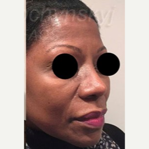 45-54 year old woman treated with Revision Rhinoplasty after 3788162