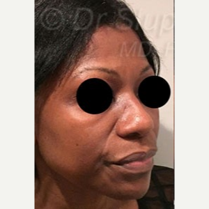 45-54 year old woman treated with Revision Rhinoplasty before 3788162
