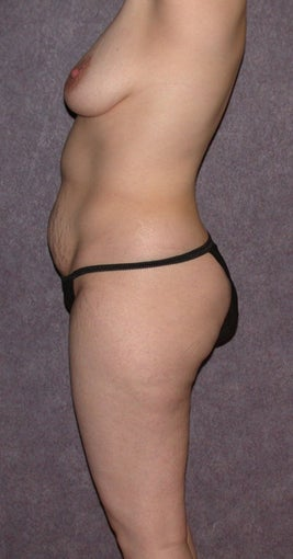 Mommy makeover - Lipo, tummy tuck, breast lift and augmentation