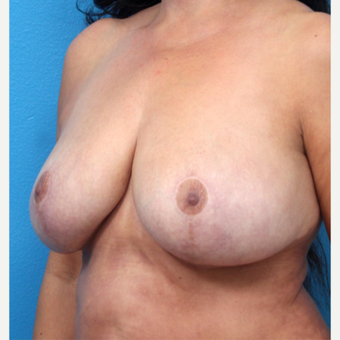 45-54 year old woman treated with Breast Implant Removal after 3266350