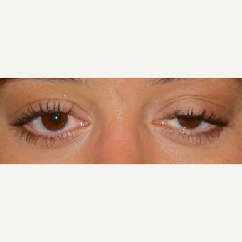 25-34 year old woman treated with Eyelid Surgery before 1559536