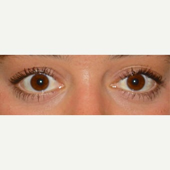 25-34 year old woman treated with Eyelid Surgery after 1559536