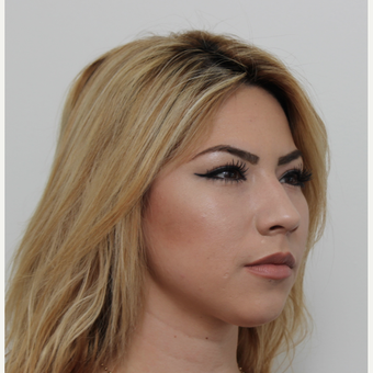 18-24 year old woman treated with Rhinoplasty before 3371526