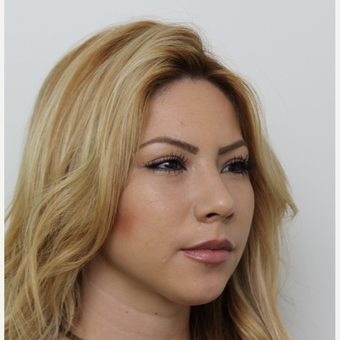 18-24 year old woman treated with Rhinoplasty after 3371526