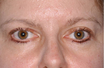Thyroid Eye Disease Eyelid retraction after 640816