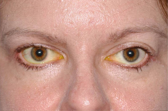 Thyroid Eye Disease Eyelid retraction before 640816