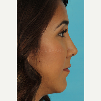 25-34 year old woman treated with Rhinoplasty after 3690960
