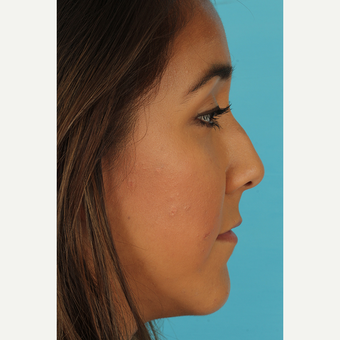 25-34 year old woman treated with Rhinoplasty before 3690960